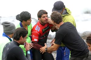 surfista herido
